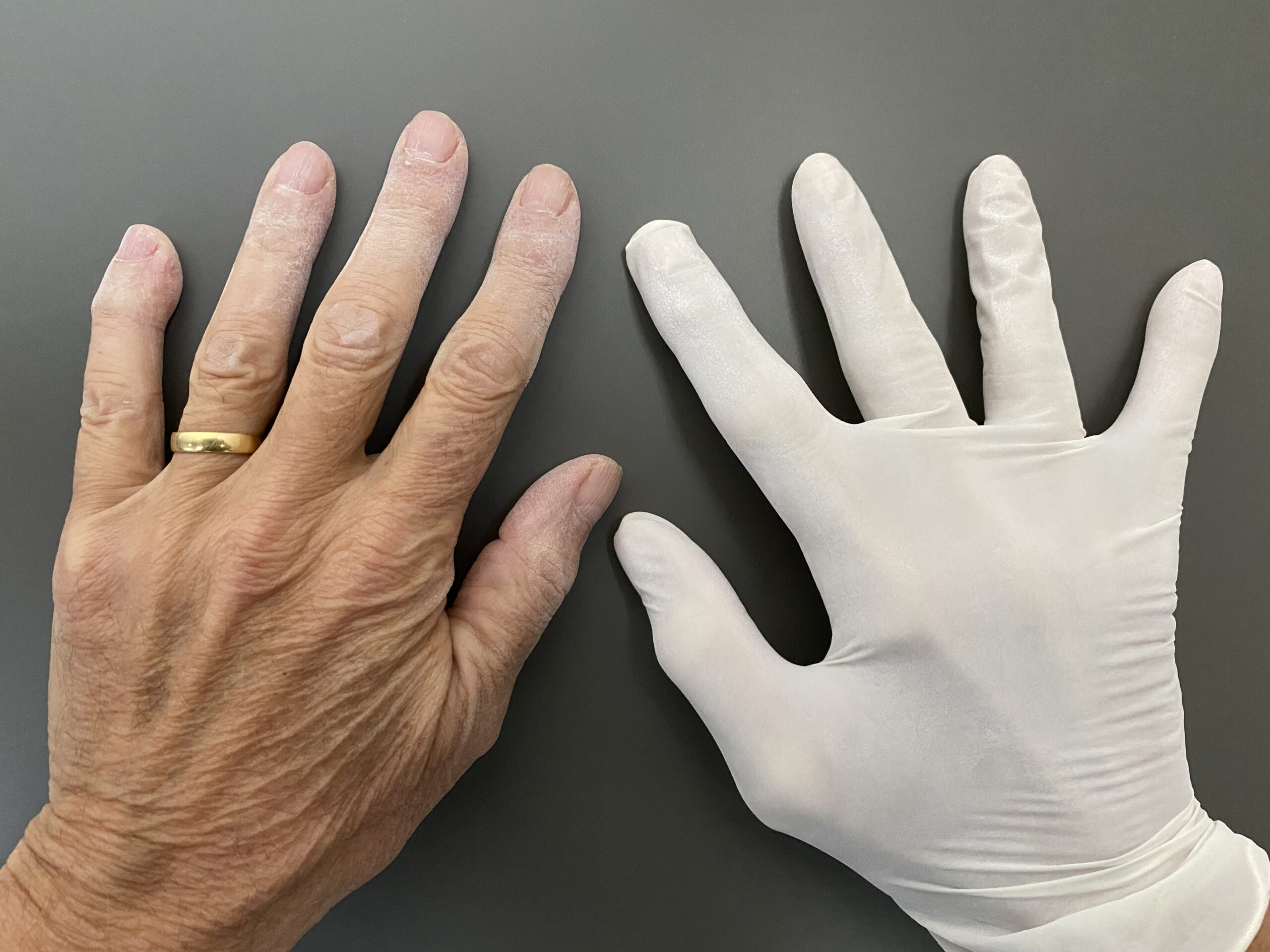Hands up! What are the gloves for?